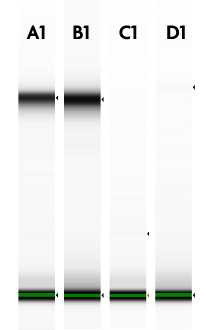 TapeStation analysis of Nuclear RNA before and after DNase I treatment