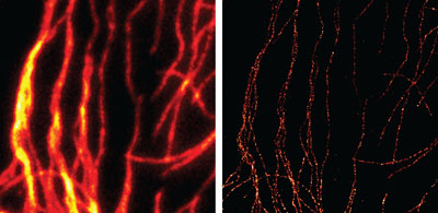 Comparison of conventional widefield microscopy and GSDIM microscopy using Chromeo 505 Goat anti-mouse IgG secondary antibody