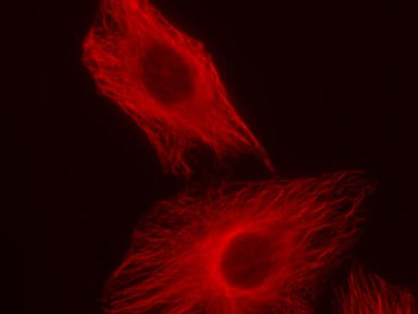 HeLa cells stained with alpha Tubulin pAb and Chromeo 494 Goat anti-Rabbit IgG.
