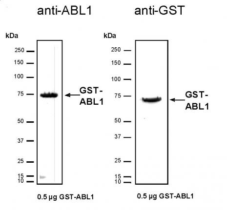 Recombinant ABL1 protein, active, analyzed by SDS-PAGE gel.