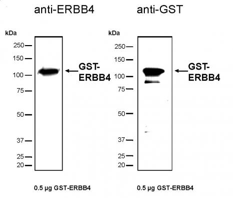 Recombinant ErbB-4 protein, active analyzed by SDS-PAGE gel.