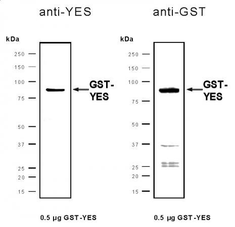 Recombinant Yes protein, active analyzed by SDS-PAGE gel.