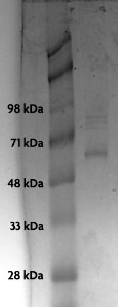Recombinant p53 protein analyzed by SDS-PAGE gel.