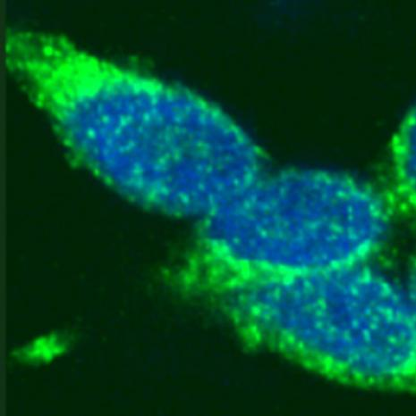 Rad51 antibody (pAb) tested by immunofluorescence.