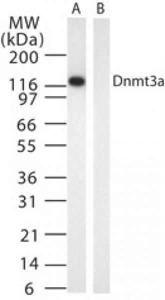 DNMT3A antibody (mAb) tested by Western blot.