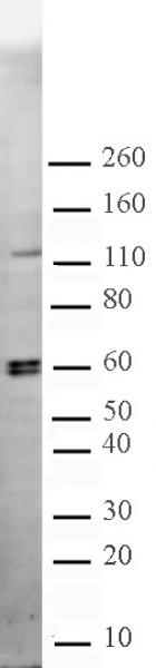 CARM1 antibody (pAb) tested by Western blot.