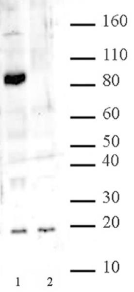 Jhd2 antibody (pAb) tested by Western blot.
