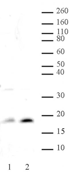 Histone H3K14ac antibody (pAb) tested by Western blot.