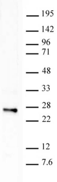Histone H2BK120ub1 antibody (mAb) tested by Western blot.