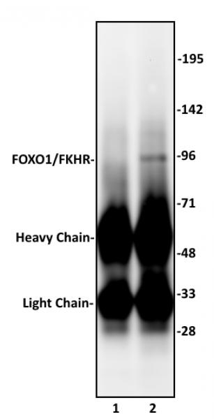 FOXO1/FKHR antibody (pAb) tested by immunoprecipitation.