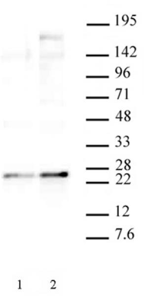 HP1 gamma phospho Ser93 antibody (pAb) tested by Western blot.