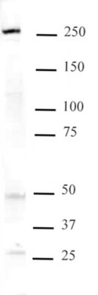 Mi-2 beta antibody (mAb) tested by Western blot.