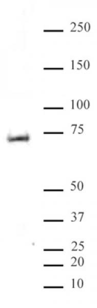 MeCP2 phospho Ser80 antibody (pAb) tested by Western blot.
