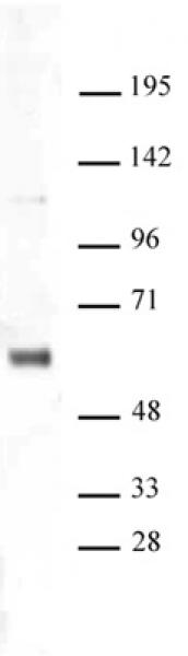 SNF5 antibody (pAb) tested by Western blot.