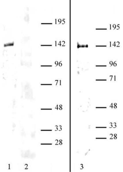 HDAC9 antibody (pAb) tested by Western blot.