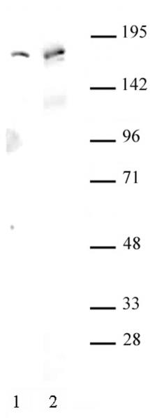 AIB1 / SRC-3 antibody (pAb) tested by Western blot.
