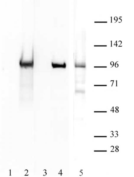 Boris / CTCFL antibody (pAb) tested by Western blot.