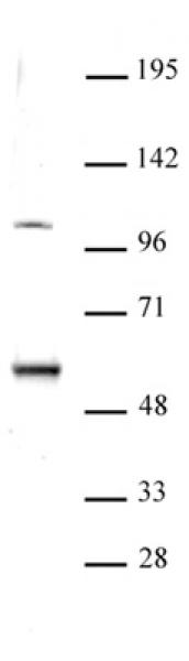 ELP3 antibody (pAb) tested by Western blot.