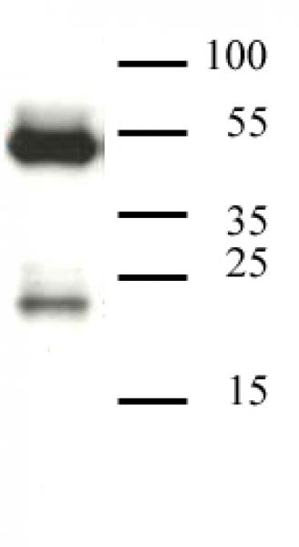 CAF-1 p60 antibody (mAb) tested by Western blot.