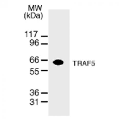 TRAF5 antibody (mAb) tested by Western blot.
