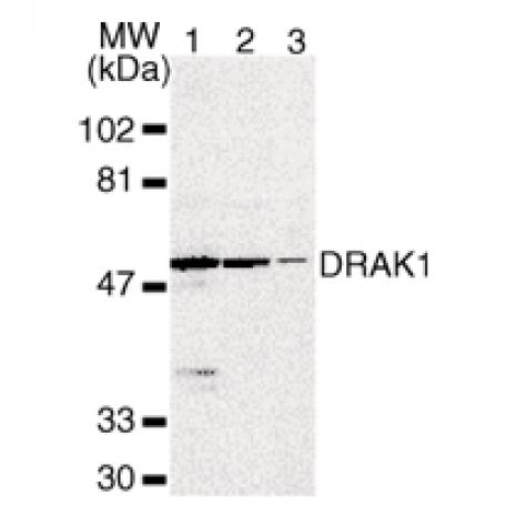 DRAK1 antibody (pAb) tested by Western blot.