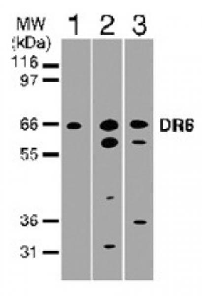 DR6 antibody (pAb) tested by Western blot.