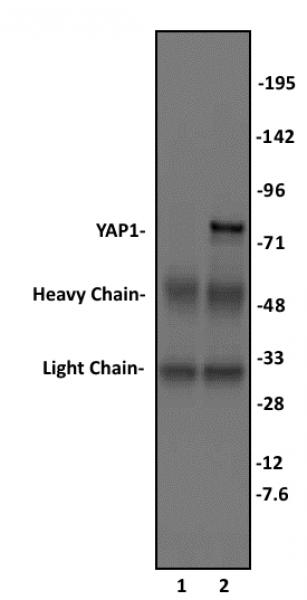 YAP1 antibody (pAb) tested by immunoprecipitation.