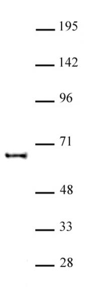 KAT5 antibody (pAb) tested by Western blot.