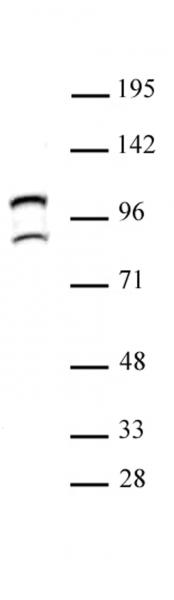 STAT6 antibody (pAb) tested by Western blot.