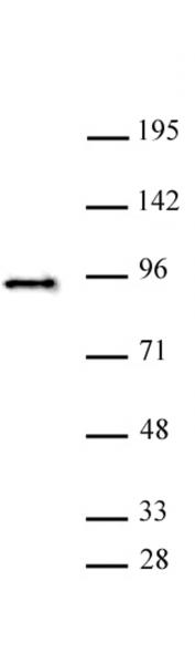 SATB2 antibody (pAb) tested by Western blot.