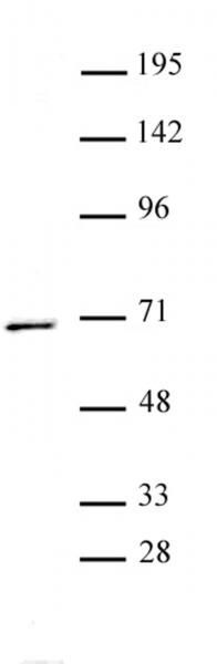 PPM1D antibody (pAb) tested by Western blot.