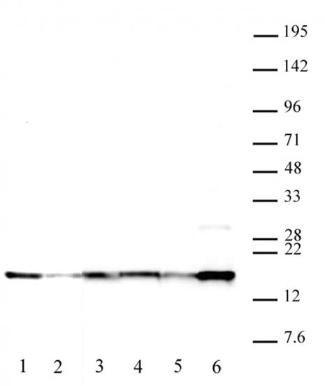 Histone H2A.XY142ph antibody (pAb) tested by Western blot.