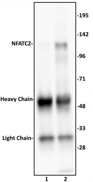 NFATC2 antibody (pAb) tested by immunoprecipitation.