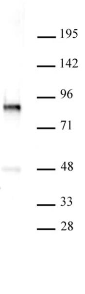 PKC-B antibody (pAb) tested by Western blot.