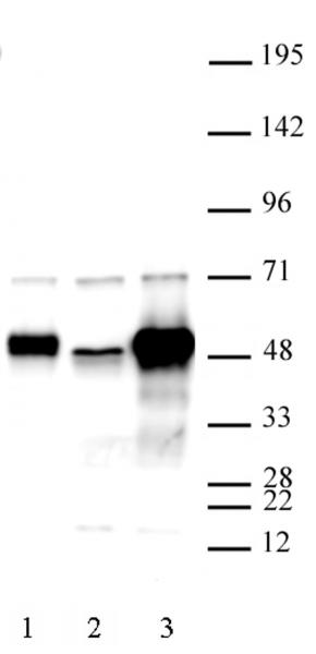 C17orf96 antibody (pAb) tested by Western blot.